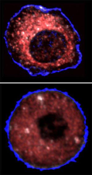 Інфрачервоний лазер відшукує ракові клітини